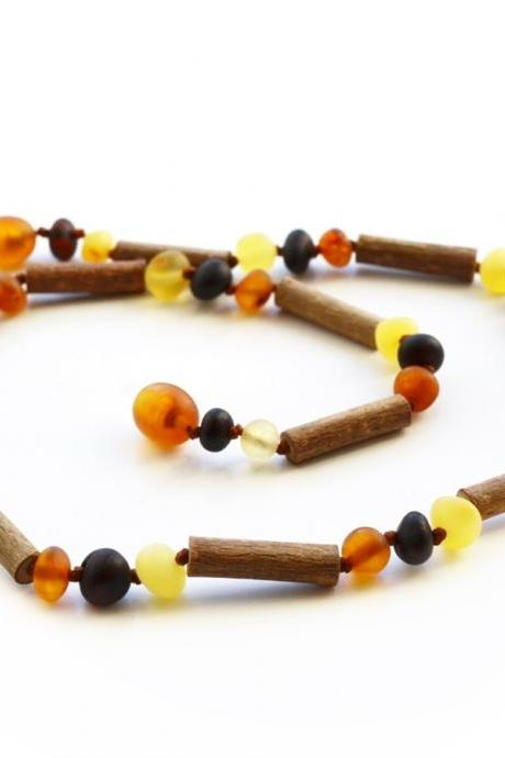 Hazelwood with Baltic amber teething necklace for babies. Healing 100% jewelry. Baltic amber teething necklace with wood. 0518